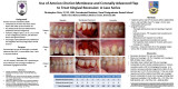 Use of Amnion-Chorion Membrane and Coronally Advanced Flap to Treat Gingival Recession: A Case Series
